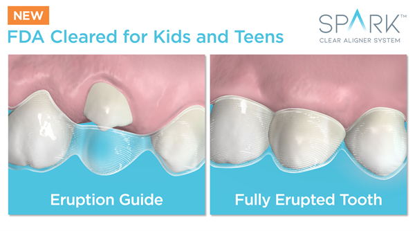 Spark Clear Aligners Receive New FDA Approval