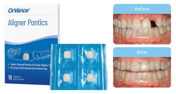 OrVance Launches the First Aligner Pontics Solution for Patient Use
