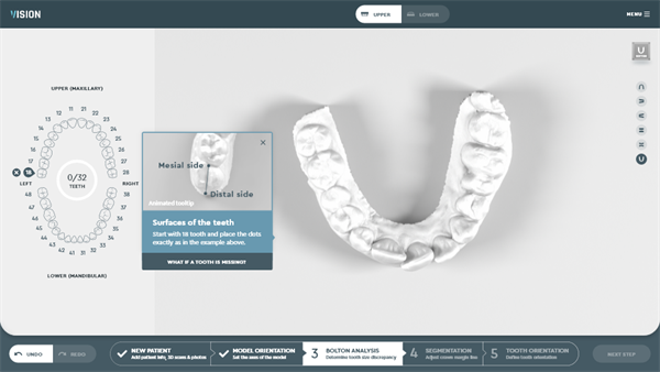 SoftSmile Reveals New Aligner Software Solution at Virtual AAO Meeting