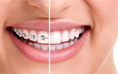 When is the best time to have orthodontic treatment?