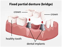 Dental Implants vs. Bridges — Which is Better?