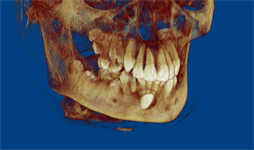 Impacted Canine  CBCT before and after
