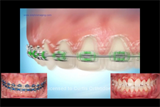 Diode laser contouring post orthodontics:  Icing on the cake!