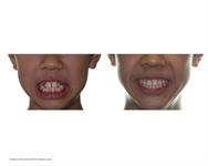 Taking great dental photos