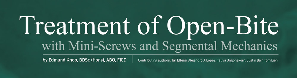 Header: Treatment of Open-Bite with Mini-Screws and Segmental Mechanics