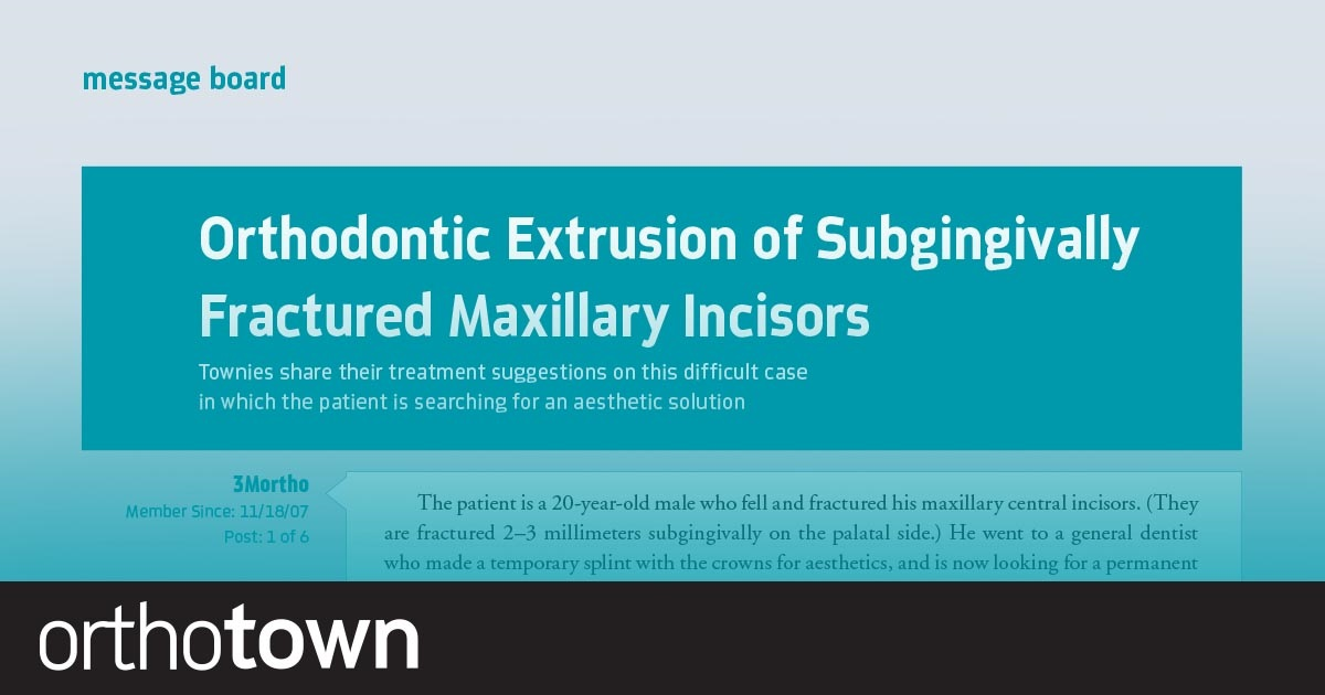 Orthodontic Extrusion of Subgingivally Fractured  Maxillary Incisors Townies share their treatment suggestions on this difficult case in which the patient is searching for an aesthetic solution.