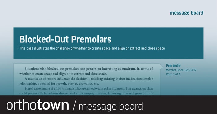 Blocked-Out Premolars