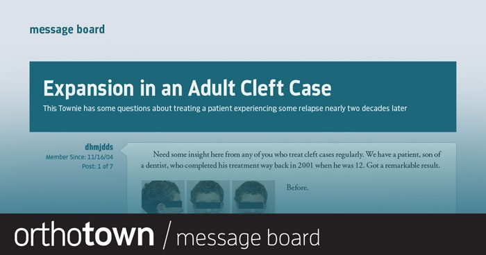 Expansion in an Adult Cleft Case