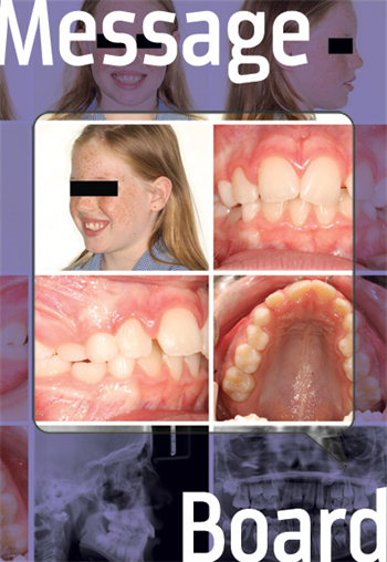 Treatment Approach  A doc shares a case involving a young girl in the mixed dentition and seeks advice on how to approach treatment.