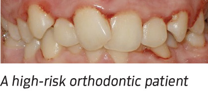 A high-risk orthodontic patient