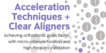 Acceleration Techniques  for Clear Aligner Patients Dr. Payam Ataii discusses how acceleration techniques such as manual osteoperforation and high-frequency vibration can help speed orthodontic treatment of patients, even if they insist on using only clear aligners during treatment.