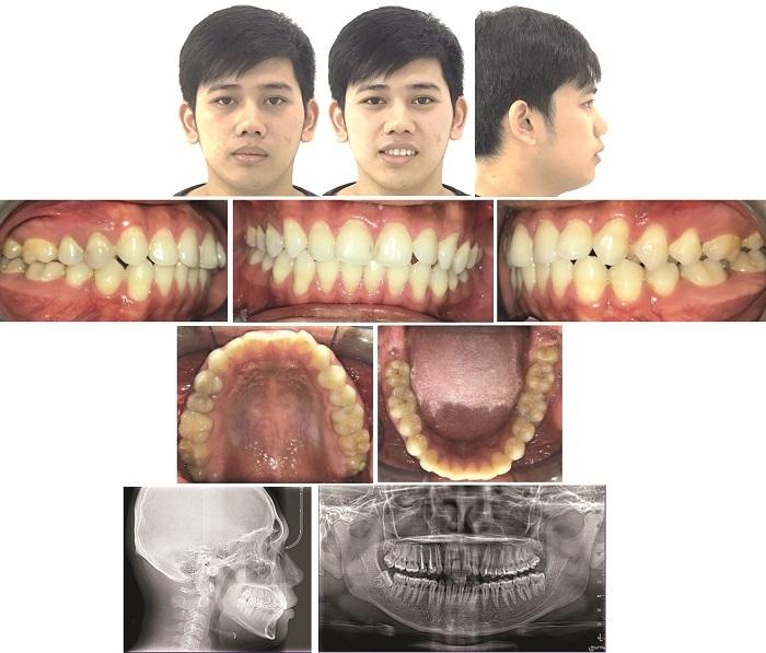 Dental TADs Case