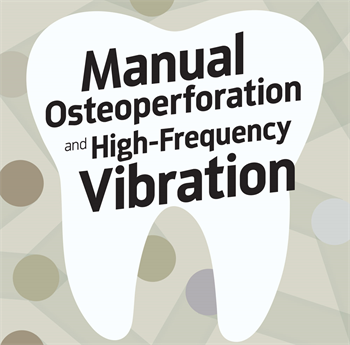 Manual Osteoperforation and High-Frequency Vibration Dr. Bruce McFarlane shares four cases that used a combination of manual osteoperforation to treat stubborn cases and high-frequency vibration to help with aligner seating.