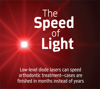 The Speed of Light Dr. John Hendy discusses how using lasers can help expedite orthodontic treatment.