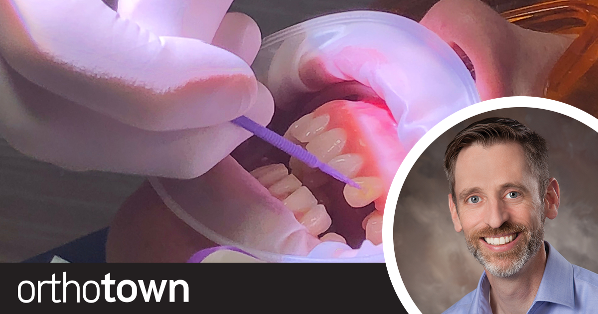 """A Clear Method Dr. Darren Forcier explains how he treats """"aesthetically astute"""" patients who aren't keen on traditional braces. His preferred method uses clear aligners, digital workflows and composite attachments."""