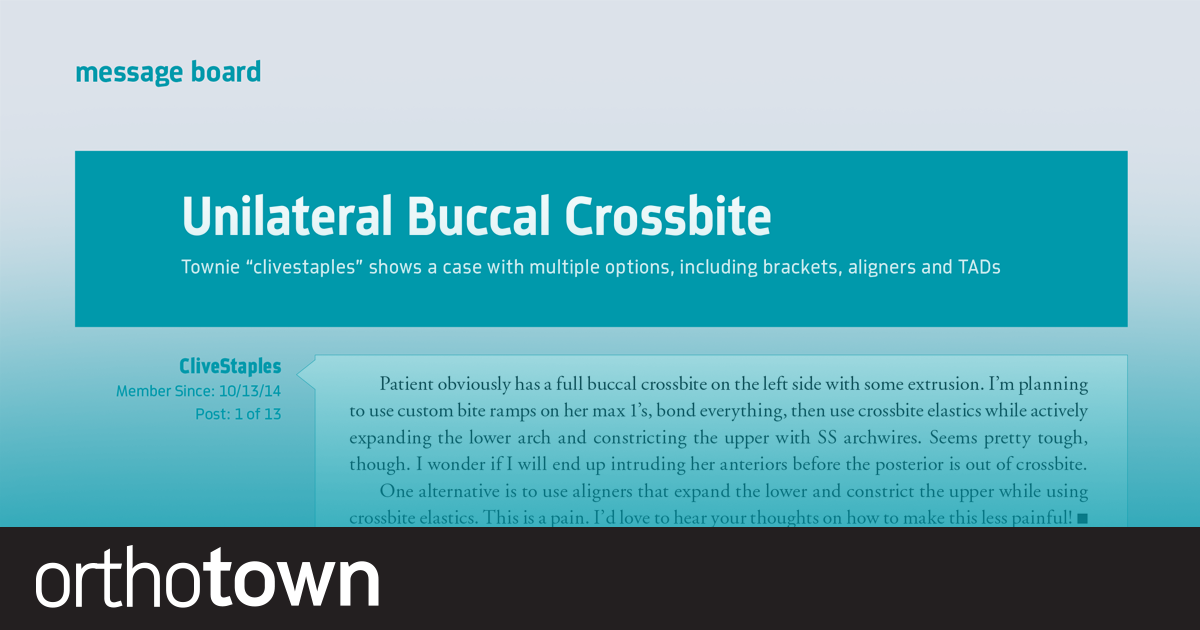 """Unilateral Buccal Crossbite Townie """"clivestaples"""" shows a case with multiple options, including brackets,  aligners and TADs."""