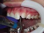 Lateral Incisor Restoration