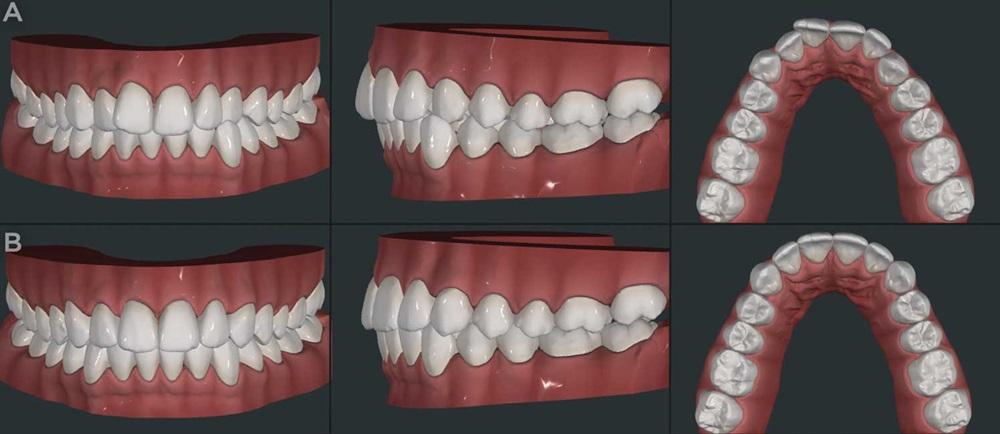 Showcase_fixed orthodontic treatment options