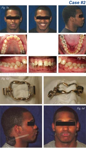 alexander orthodontics principle