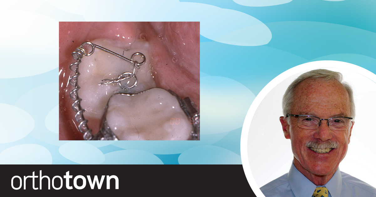 Freeing Impacted Lower Second Molars Dr. Earl Johnson shares his treatment philosophy for deimpacting lower second molars—no surgical flaps or molar extrusion necessary
