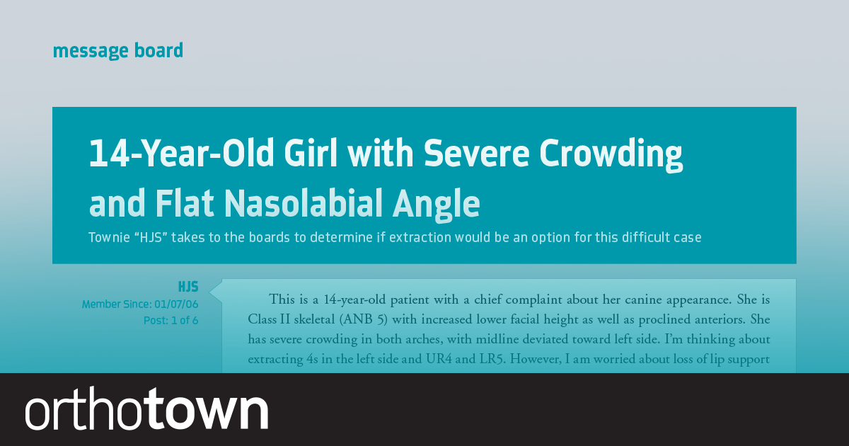 "14-Year-Old Girl with Severe Crowding and Flat Nasolabial Angle Townie ""HJS"" takes to the boards to determine if extraction would be an option for this difficult case."