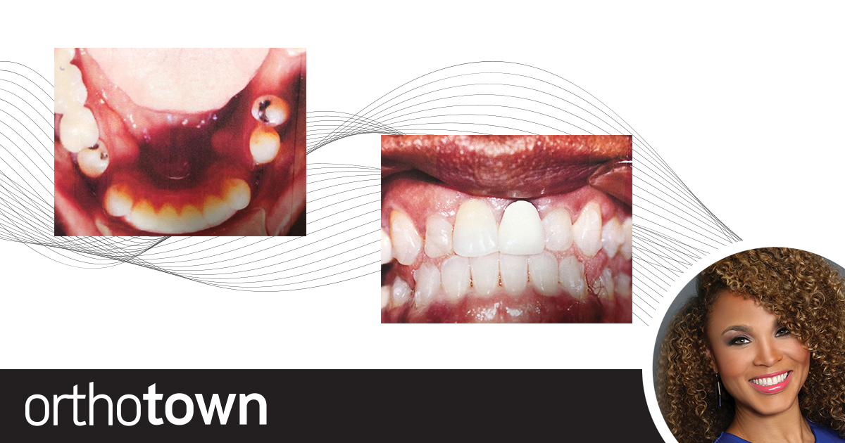 The Need for Speed Dr. Heather Brown shares case studies that demonstrate the use of vibrational technologies to speed orthodontic treatment.