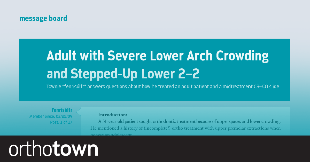 """Adult with Severe Lower Arch Crowding and Stepped-Up Lower 2-2 Townie """"Fenrisúlfr"""" answers questions about how he treated an adult patient and a midtreatment CR–CO slide."""