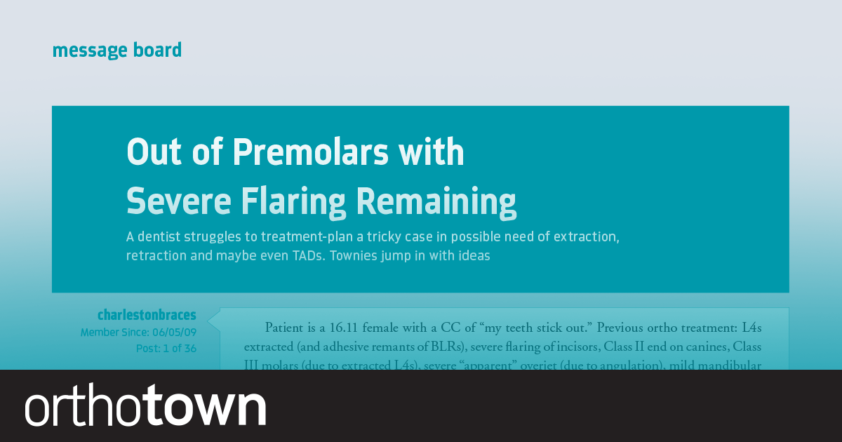 Out of Premolars with Severe Flaring Remaining A doc struggles to treatment-plan a tricky case in possible need of extraction, retraction and maybe even TADs. Townies jump in with ideas.
