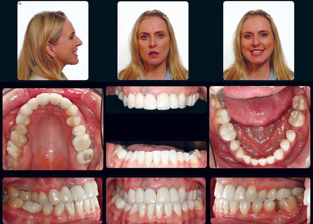 Treatment of Interdisciplinary Orthodontic Patients