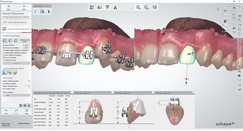 3Shape Orthodontic Indirect Bonding Solution Integrates with RMO Bracket Systems