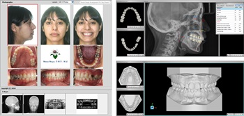 InnSoft Announces New Software, Ortho Share 3D